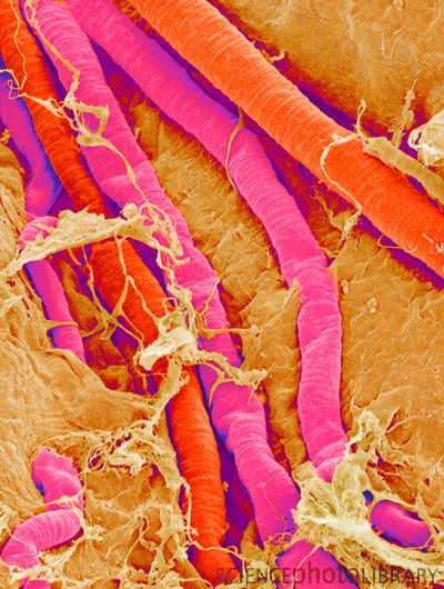 Brain blood vessels (SEM).