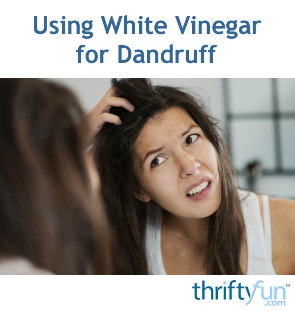 This is a guide about using white vinegar for dandruff. Instead of trying expensive medicated shampoos, try using vinegar instead.