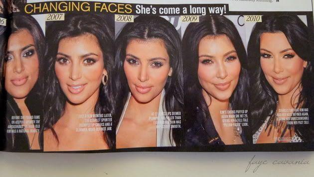What a metamorphosis! Wow. Via  Kim Kardashian plastic surgery. Makes me angry she denies having ANY work done.