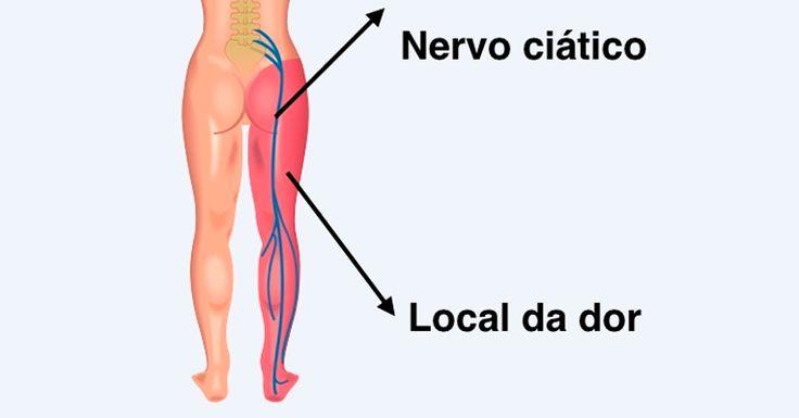 Como identificar e tratar o Nervo Ciático Inflamado - Tua Saúde https://www.pinterest.com/pin/560698222351836624/