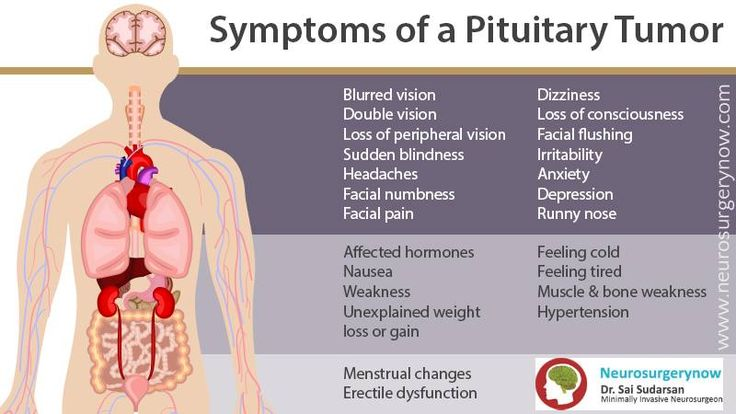 Pituitary Gland Tumor Treatment Natural