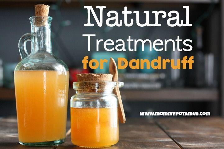 How To Eliminate Dandruff and itchy dry scalp Naturally - MommypotamusMommypotamus  