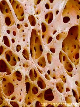 fyeahmedicine:  Bone tissue. Coloured scanning electron micrograph (SEM) of cancellous (spongy) bone. Bone tissue can be either cortical (compact) or cancellous. Cortical bone usually makes up the exterior of the bone, while cancellous bone is found in the interior. Cancellous bone is characterised by a honeycomb arrangement, comprising a network of trabeculae (rod-shaped) fibrous tissue. These structures provide support and strength to the bone. The spaces within this tissue contain bone…