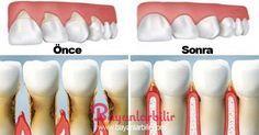 Bu doğal yöntem ile diş eti çekilmeleri duracak ve dişleriniz eski sağlı…