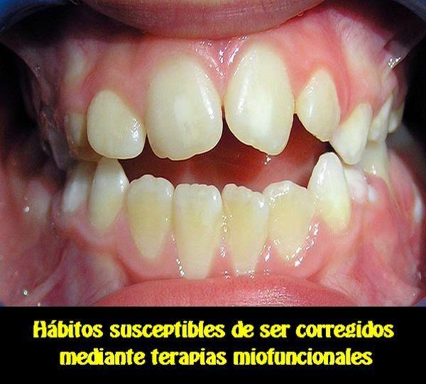 Hábitos susceptibles de ser corregidos mediante terapias miofuncionales | OVI Dental