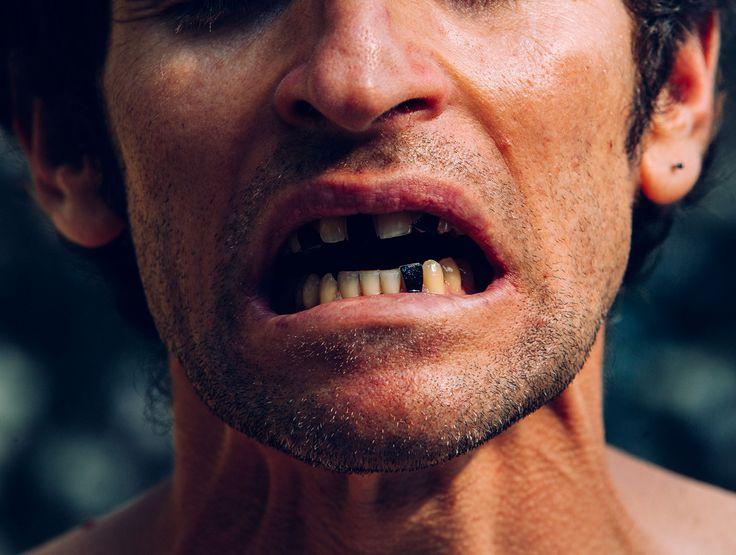 Bread & Rock - broken teeth