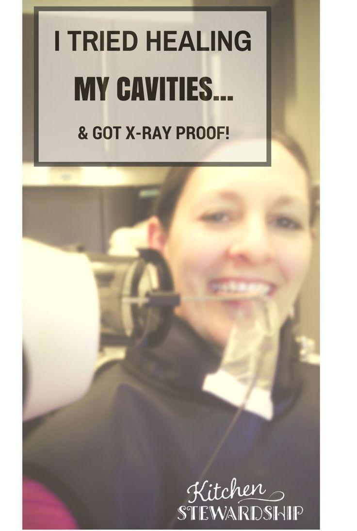 I tried healing my cavities - and got X-ray proof. Can you cure tooth decay with food and nutrition? It's a big maybe, but there's a lot to learn in this post.