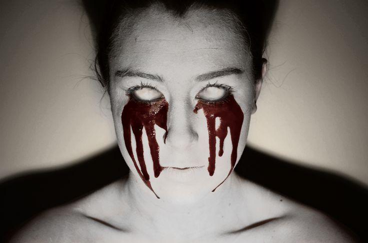 White eyes bleeding.
