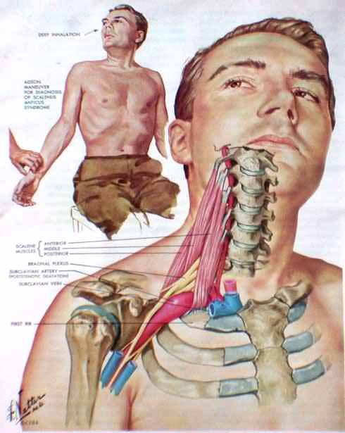 thoracic+outlet+syndrome   Medical research studies for Thoracic Outlet Syndrome are currently ...