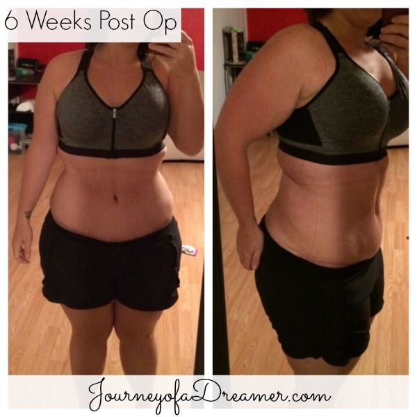 11 best images about Abdominoplasty on Pinterest | Back to ...