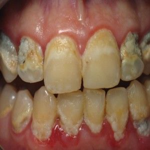 167 Best Gum Disease Images On Pinterest Dental Care