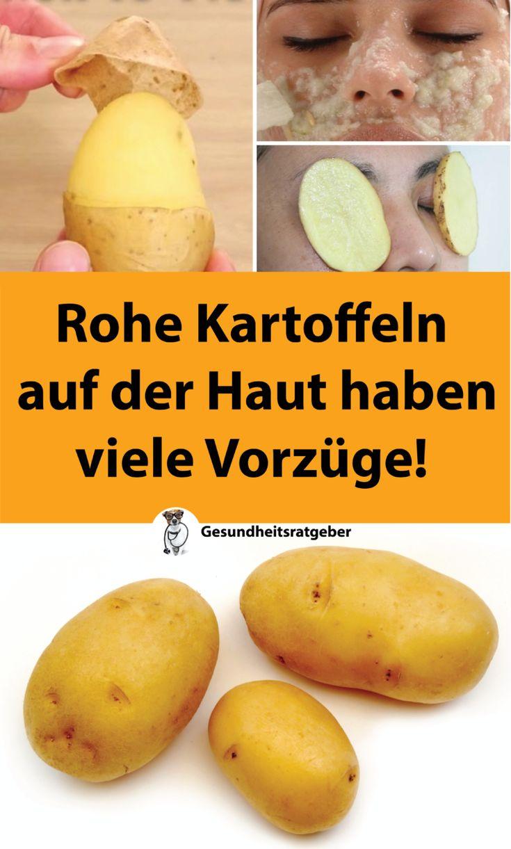 Rohe Kartoffeln auf der Haut haben viele Vorzüge! | Gesundheit – Regina Rybelyte