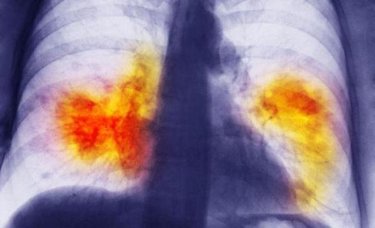 Σταδιοποίηση καρκίνου του πνεύμονα