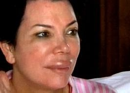 Kris Jenner - Plastic Surgery Before and After Pictures | Plastic Surgery Pics.org