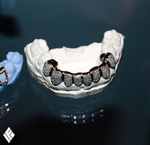 1000 Images About Gold Teeth On Pinterest: 1000+ Images About Gold Teeth & Grills On Pinterest