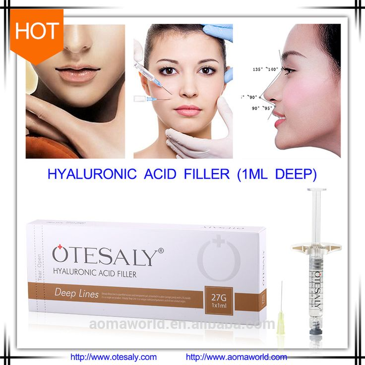 OTESALY Best Selling Produc 1ml Anti Aging Dermal Filler for Deep Lines Wrinkles