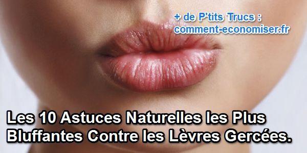 astuces naturelles contre les lèvres gercées