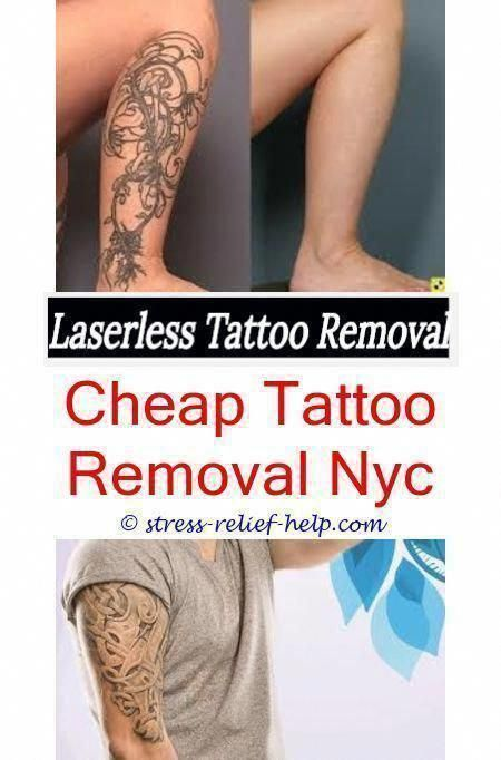 Skin Tattoo Removal Can You Donate Blood After Laser