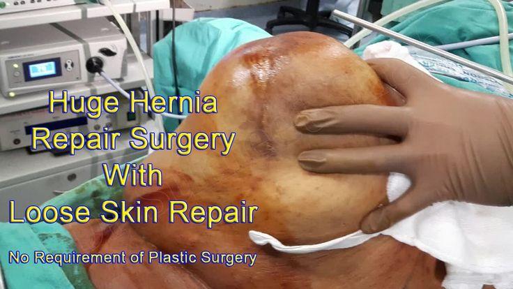 Hybrid hernioplasty by Dr Sumeet Shah