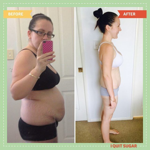 """""""I'm trying to Pin It To Win It! To guarantee a spot on the next I Quit Sugar Program, CLICK THIS IMAGE."""" Results differ for every person who does the Program. For Tabitha (pictured), quitting sugar led to her losing 15kgs and changing her relationship with food."""