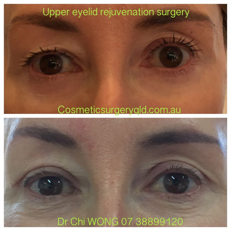 9 best Open your eyes images on Pinterest | Eyelid surgery, Laser ...