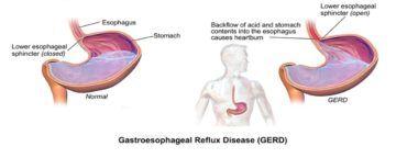 Gastro-Oesofageale Reflux behandeling