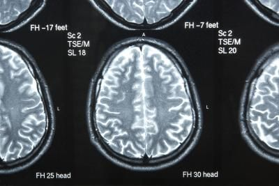 Right Brain Exercises