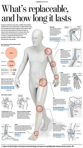 Best 25 Hip Replacement Ideas On Pinterest Physical