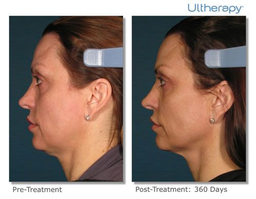 Ultherapy is designed to dramatically lift and tighten the skin while minimizing sagging around the eyes, neck and face.