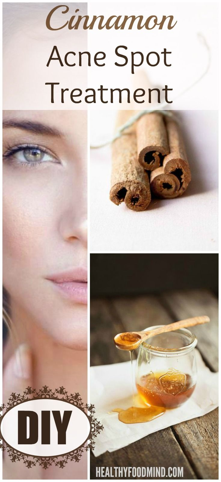 El tratamiento eficaz y rápida del acné con canela! - Mente Alimentación Saludable MindHealthy Alimentos
