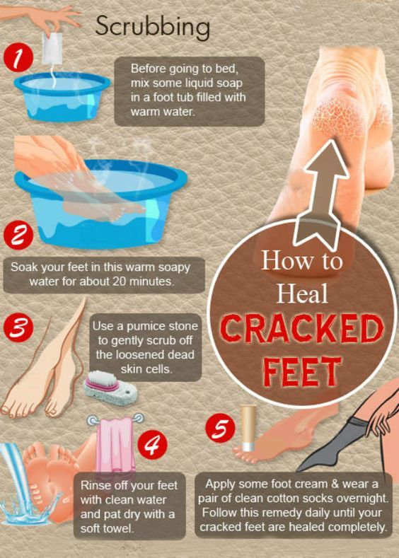 Cracked Feet - 5 Grandma�s Home Remedies