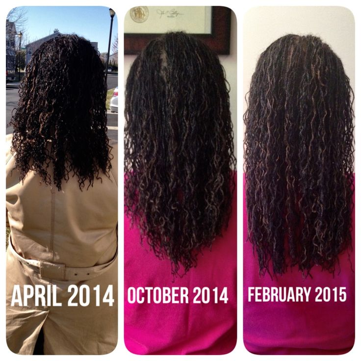 Microlocs micro braidlocs with extensions. 10 months of ...