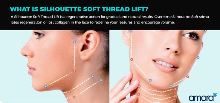 What Is Silhouette Thread Lift from Silhouette Soft - Amara Clinics