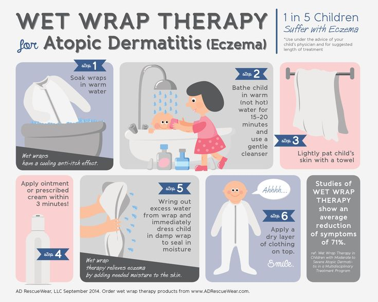 Antibiotic Exposure and Risk of Food Allergies in Children and Babies Who Also Have Eczema.