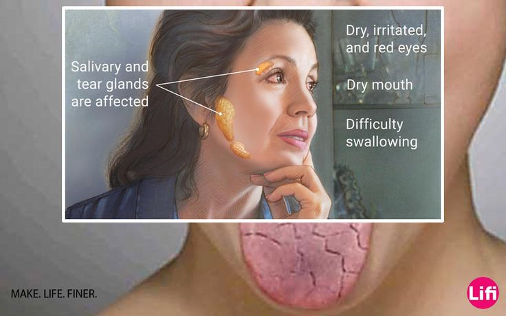 Top 10 natural remedies for sjogren's syndrome - Health & Fitness