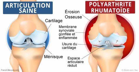 La polyarthrite rhumatoïde est une maladie auto-immune caractérisée par l'autodestruction de l'organisme, et moins d'un pour cent des personnes qui en sont atteintes bénéficient d'une rémission spontanée. http://french.mercola.com/sites/articles/archive/2016/11/16/polyarthrite-rhumatoide-remission.aspx