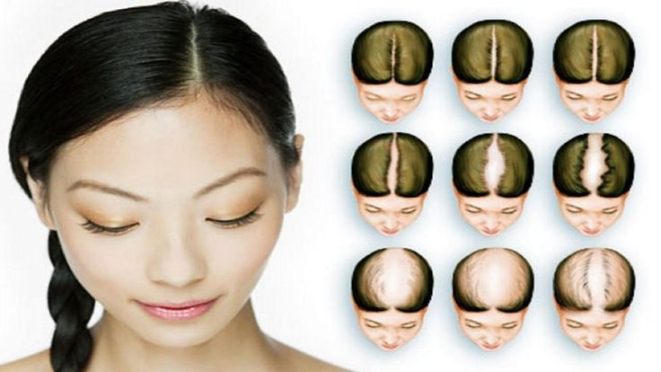 Women Vs. Men Hair Loss – Video #hair #hairstyles #hairloss #women #men