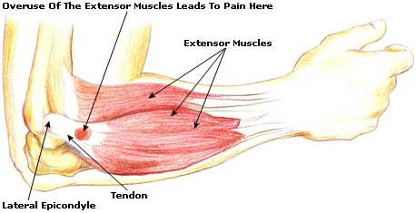 What is Tennis Elbow? Best Brace for Tennis Elbow