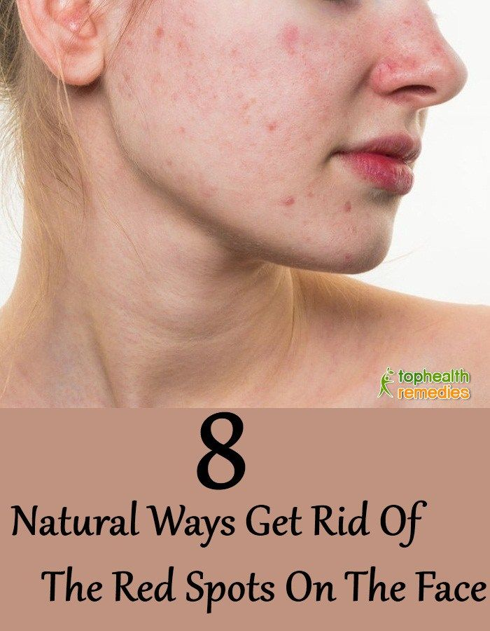 8 Natural Ways Get Rid Of The Red Spots On The Face