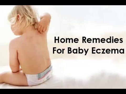 How to Get Rid of Eczema : Home Remedies For Baby Eczema -  CLICK HERE for the Eczema Cure! #eczema #eczemacure #healthguides  How to Get Rid of Eczema : Home Remedies For Baby Eczema   Learn How to get rid of eczema fast at home naturally. The eczema is an acute or chronic inflammation of the skin that generates symptoms such as itching, swelling and... - #Eczema