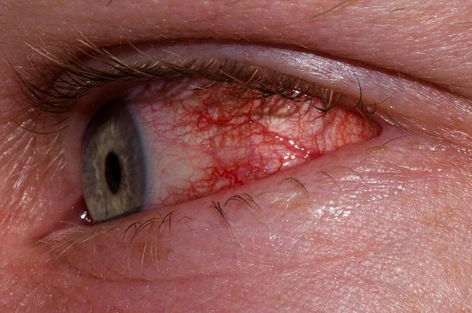 The Best List of Eye Mnemonics for Optometry and Ophthalmology | OD Career. Add ToRCHeS to the lens section. Causes of congenital cataracts: toxoplasmosis, rubella, cytomegalovirus, herpes simplex, syphilis.