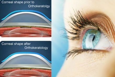 Orthokeratology - Orthokeratology is a revolutionary contact lens treatment program designed to reduce or eliminate myopia and astigmatism. This procedure utilizes special high tech rigid gas permeable contact lenses to gently, safely and effectively change the curvature of the front surface of the eye.