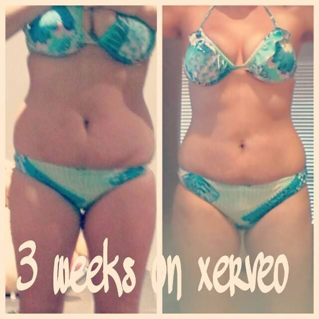 amazing results in just 3 weeks - what can you achieve in 3 weeks with xerveo? www.xerveo.com/weighlessez