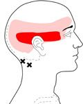 Suboccipitals  HEADACHE that starts at the base of the skull (occiput) and GOES EVERYWHERE inside the head with some pain into the FOREHEAD and EYE.