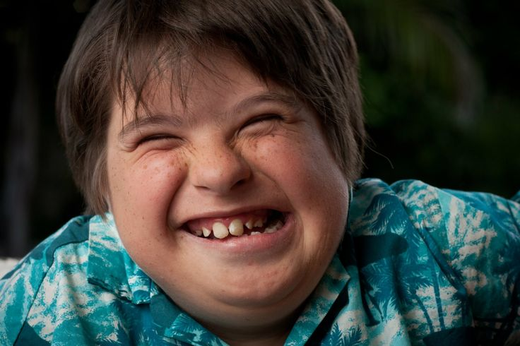 http://www.doc-advice.com/life-expectancy-increases-for-downs-syndrome-patients/