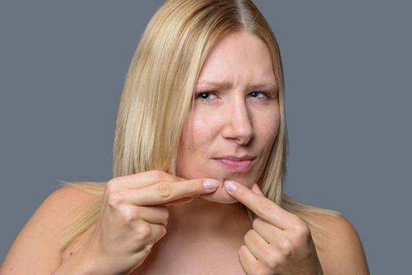 Como acabar com cravos no queixo - tratar, eliminar e prevenir. Você costuma ter cravos no queixo e gostaria de saber como acabar com o problema? Os cravos e as espinhas que surgem nessa parte do seu rosto costumam estar associados a mudanças hormonais do seu corp...