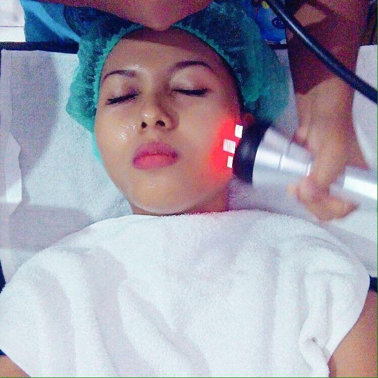 Joesoef skin care anti acne facial treatment