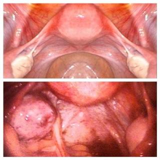 top: normal uterus bottom: endometriosis stage IV and adenomyosis.