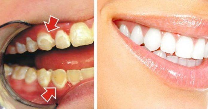 Будьте собственным стоматологом! Посмотрите, как избавиться от зубного налета всего за 5 минут! http://bigl1fe.ru/2017/06/12/budte-sobstvennym-stomatologom-posmotrite-kak-izbavitsya-ot-zubnogo-naleta-vsego-za-5-minut/