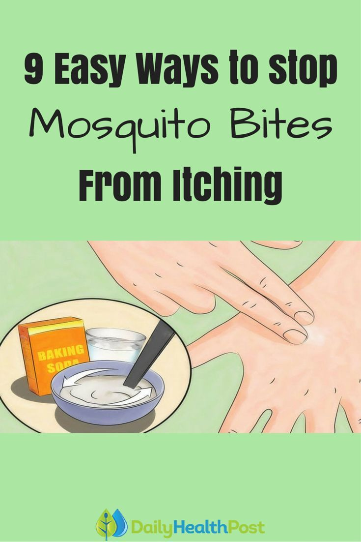 how to get your mosquito bites to stop itching